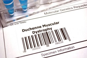 Distrofia Muscolare-dieta di aminoacidi-studio Centro Dino Ferrari -2